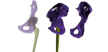 3D建模和3D打印可以改善THA诊断、分类和手术计划