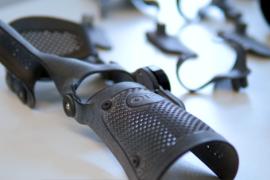 先临三维3D扫描和3D打印技术支撑矫形支具定制全面走向数字化