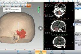 即时3D打印导板辅助脑出血微创手术 黑焰医疗与徐永革团队助力基层医院
