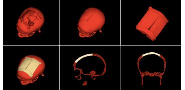 研究人员发布免费的自动化设计软件以生产3D打印颅骨植入物