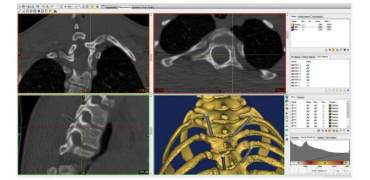 土耳其大学研究人员评估3D打印在脊柱外科中的应用