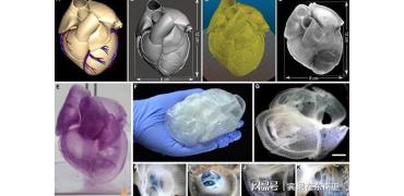 美国的科学家用生物材料3D打印出世界上第一个实物尺寸的心脏
