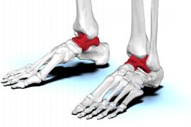 首个针对患者的3D打印距骨植入物获FDA批准