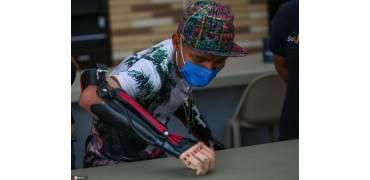 重获新生!哥伦比亚17岁青年获赠3D打印假肢